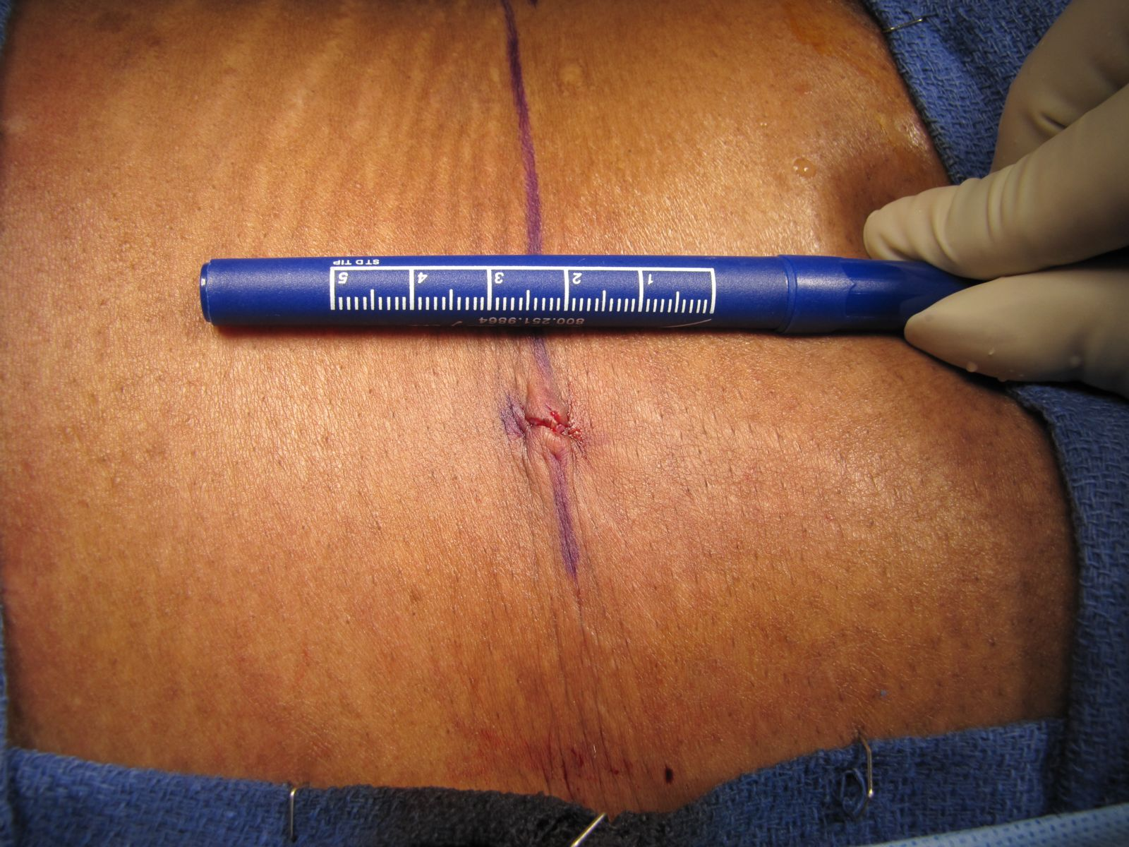 Incision site immediately after a recent endoscopic discectomy
