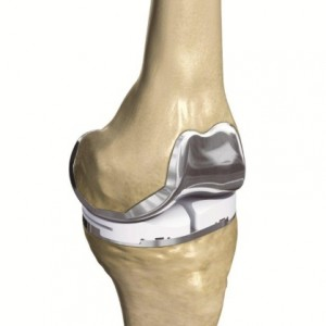 Conformis Knee Image